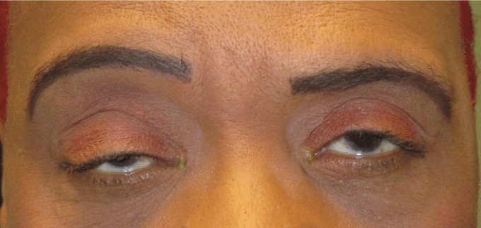 before right upper eyelid ptosis repair surgery