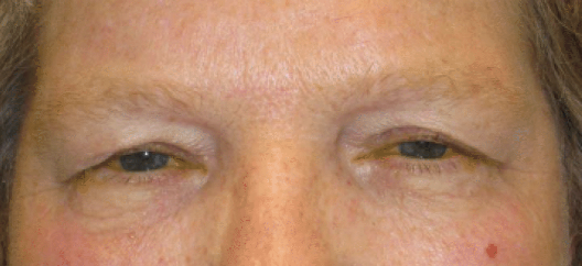 bilateral upper eyelid ptosis repair