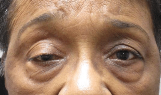 before bilateral upper eyelid ptosis repair surgery