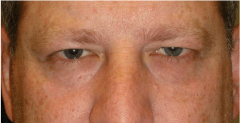 upper-eye-blepharoplasty