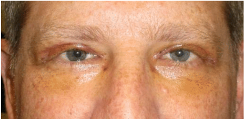 upper-eyelid-blepharoplasty-one-week-after-surgery
