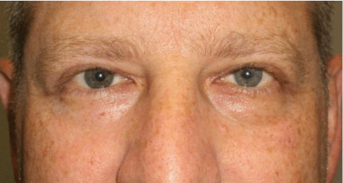 upper-eyelid-five-weeks-after