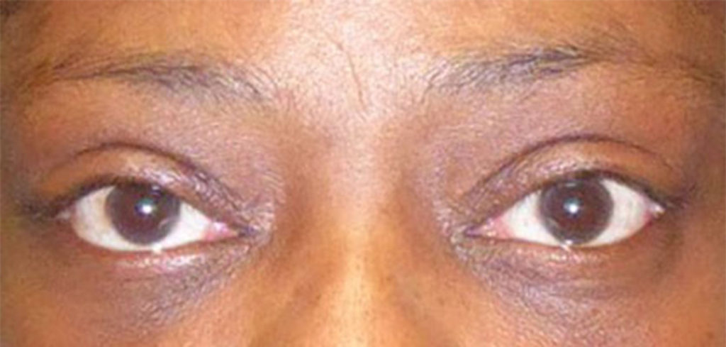 A person after receiving ptosis repair from virginia eye cosmetic