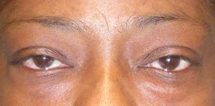 A person with Ptosis (droopy eyelid)