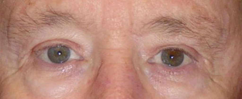 Example of a man after receiving an upper blepharoplasty from virginia eye cosmetic