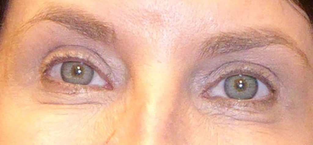 A person after receiving an upper blepharoplasty from virginia eye cosmetic