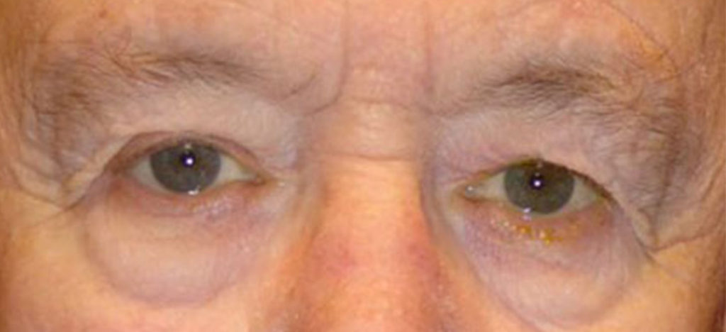Example of a man before receiving an upper blepharoplasty
