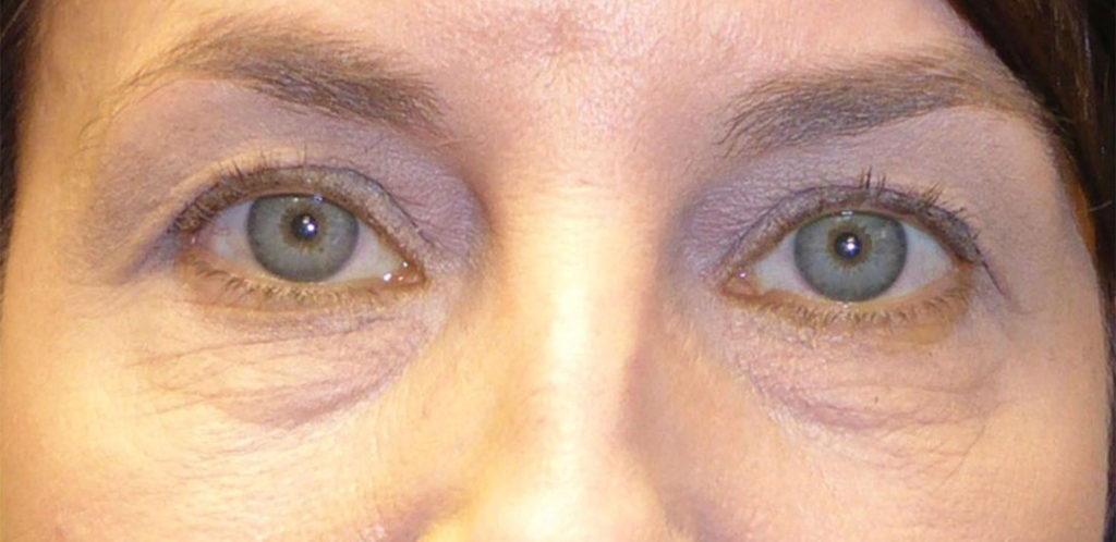 A person before an upper blepharoplasty surgery