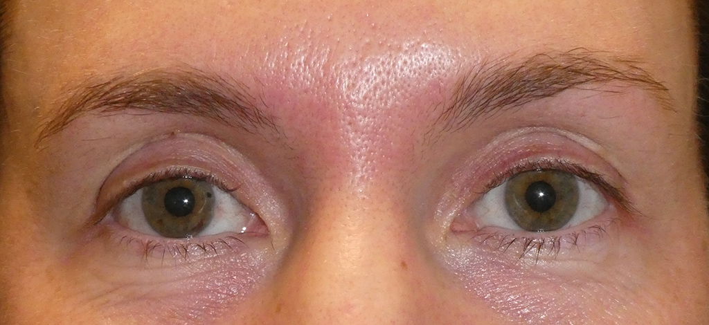 Post upper blepharoplasty