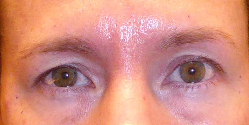 a patient before undergoing an upper blepharoplasty