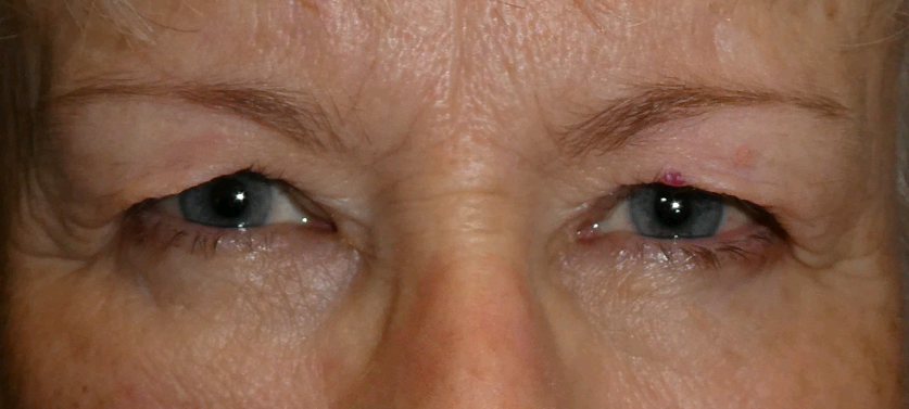 example of a face before undergoing an upper blepharoplasty