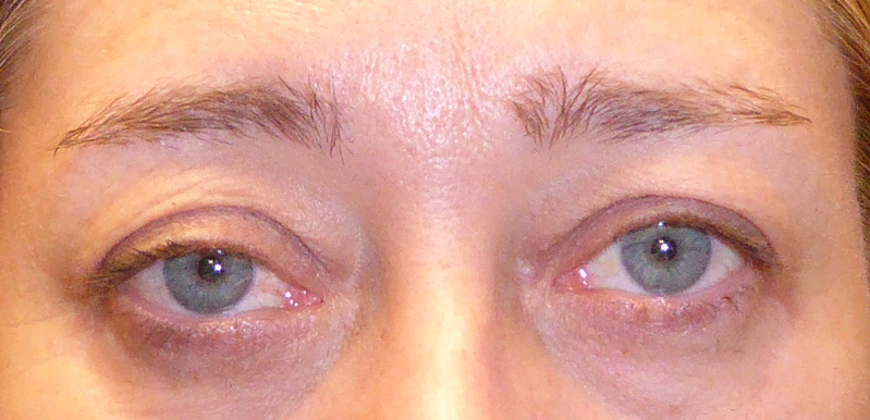 A female patient before she undergoes a ptosis repair. Her right eyelid is droopy.
