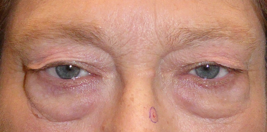 Patient before undergoing a lower blepharoplasty