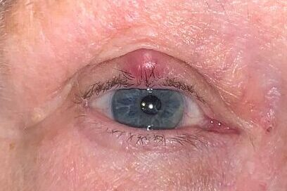 Chalazion formed on the upper eyelid of a caucasian person