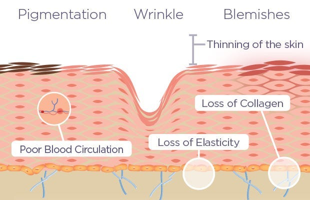 Pigmentation is caused by poor blood circulation. Wrinkles are caused by a loss of elasticity. Blemishes are caused by a loss of collagen. Chemical peels can aid in treating these issues.