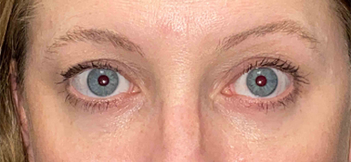 VEI Aesthetic Center - Blepharoplasty with Fat Transfer - After Surgery