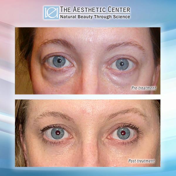 VEI Aesthetic Center - Lower Blepharoplasty Before & After