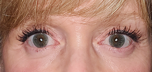 VEI Aesthetics - Lower & Upper Blepharoplasty with Fat Transfer - After Surgery
